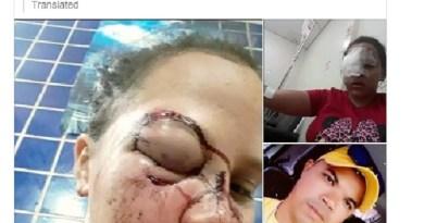 Arlito Ramos atacou ex-namorada e está foragido Imagem: Arquivo Pessoal
