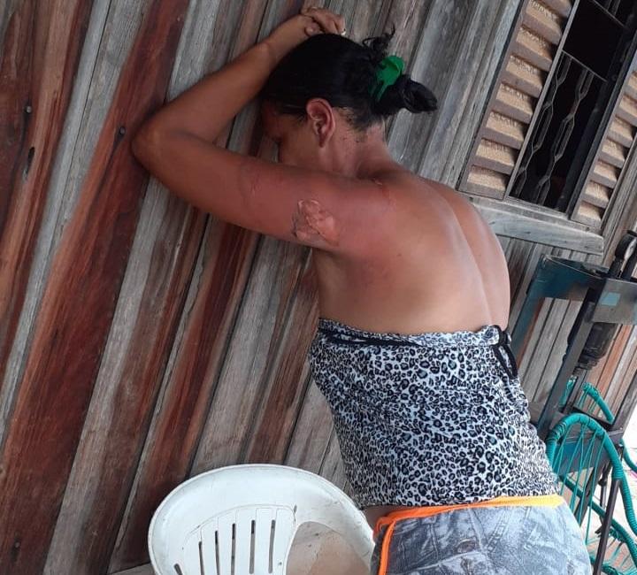 Eva foi socorrida pela vizinhança(Foto:Via WhatsApp)