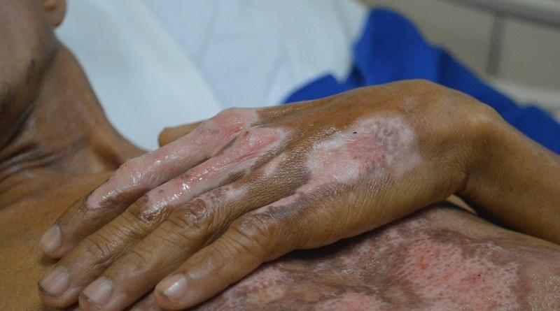 As marcas do acidente no corpo do mestre de obras, Uilton Oliveira. Foto Comunicação Pró-Saúde.