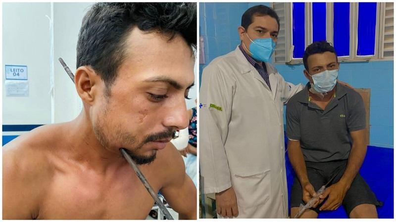 Na primeira imagem, Aldinailson com o ferro atravessado na lateral do pescoço; na segunda foto, ao lado do cirurgião geral Vinicius Savino o paciente segura o ferro retirado na cirurgia — Foto: Ascom HMS/Divulgação