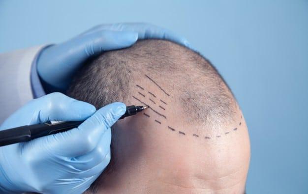 Conheça mais sobre transplante capilar