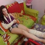Universitária cai em rua sem manutenção em Santa Mônica e sofre lesões no braço e no pé