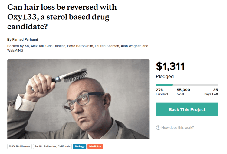 6 Early Signs Of Hair Thinning Or Balding In Men And How To Stop Them