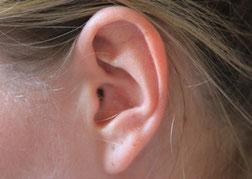 FON Akademie Fortbildungen , Hörstörungen bei Kindern