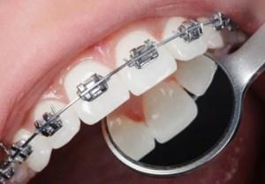 effect of dental braces