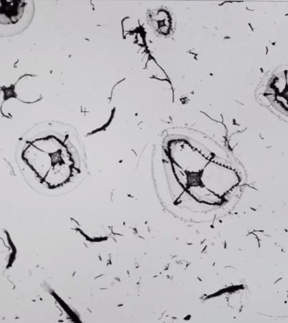 ZooScan helps U. Delaware study zooplankton in Delaware