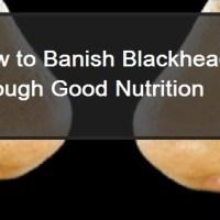 How To Banish Blackheads Through Good Nutrition