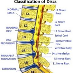 Lumbar Nerve Root Diagram Grundfos Well Pump Wiring Pain In Foot Causes Symptoms Diagnosis