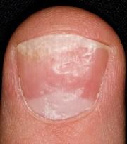 thick toenails diagnosis & treatment