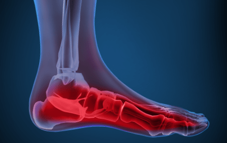 arch pain / arch strain � metatarsalgia � plantar fasciitis � pregnancy and  your feet
