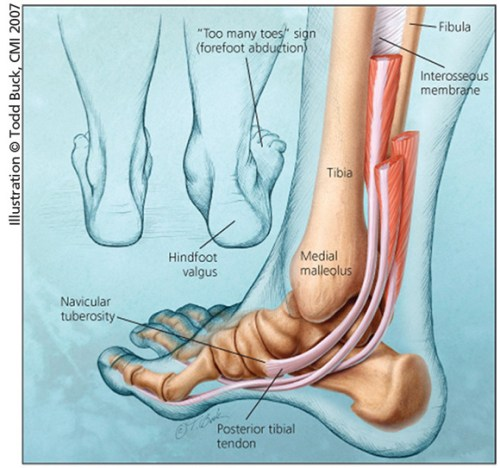 acquired adult flat foot