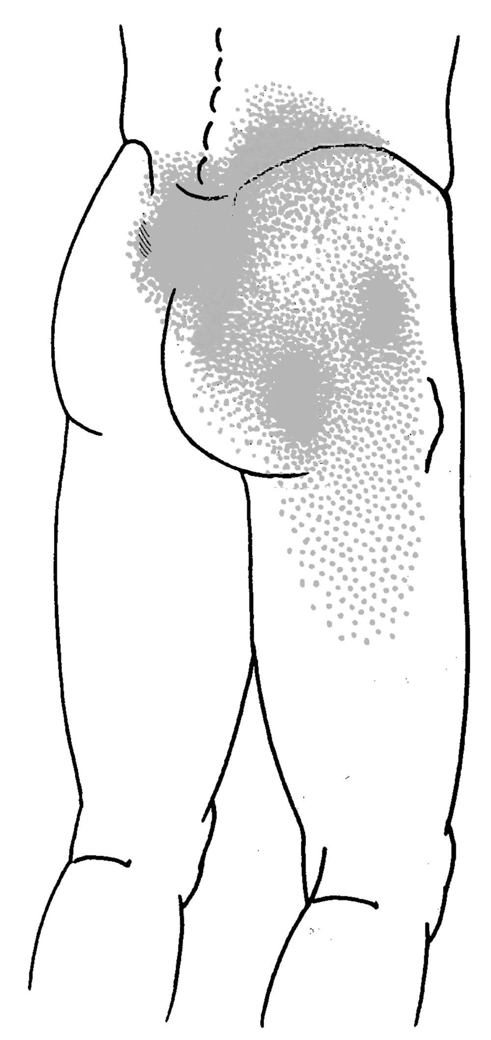 medium resolution of drawing
