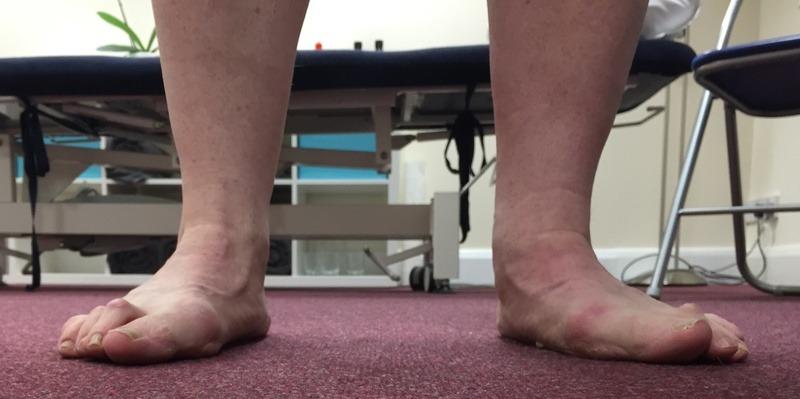 Painful flat feet