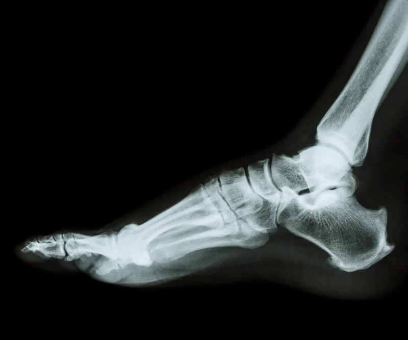 Edinburg Orthopeadic Ankle Surgeon