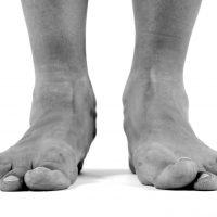 Paediatric Flat-Foot
