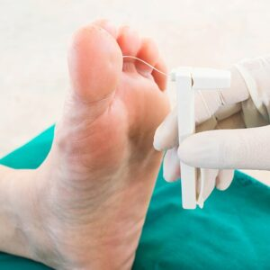 Testing for diabetic neuropathy