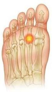 Image result for second toe bone spur