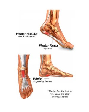 Plantar Fasciitis Specialist · 2018 Top Foot Doctor, Podiatrist in NYC