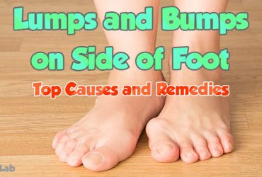Lumps and Bumps on Top of Foot Causes Symptoms and