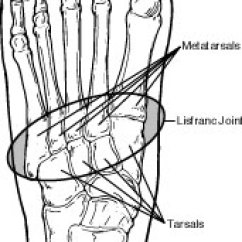 Joints Of The Foot Diagram 2005 Nissan Altima Serpentine Belt Lisfranc Injuries Health Facts Joint