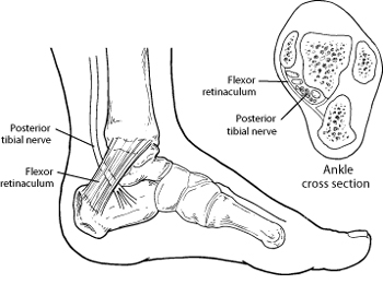 blank foot diagram air horn relay wiring interior great installation of tarsal tunnel syndrome health facts rh foothealthfacts org anatomy