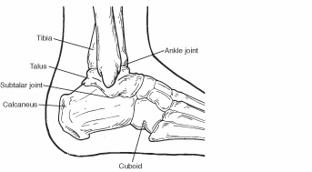 diagram of tibia stress fracture parts the eye to label fractures calcaneus heel bone foot health facts and surrounding bones