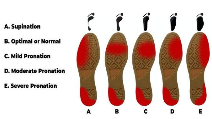 Supination severity diagram