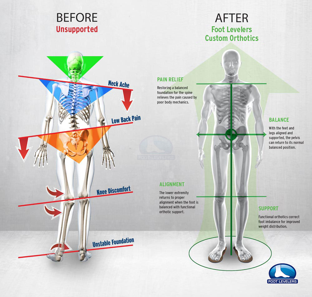 hight resolution of low back pain correction infographic