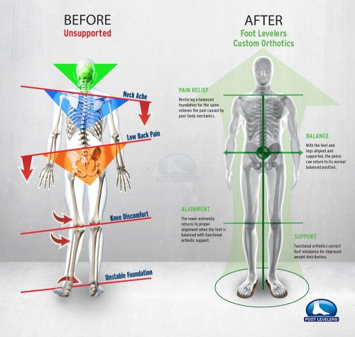 small resolution of low back pain correction infographic