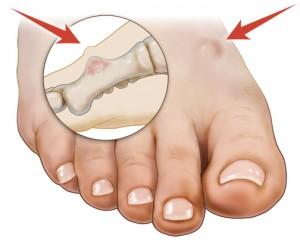 Bone Tumor of the Foot — Symptoms and Causes