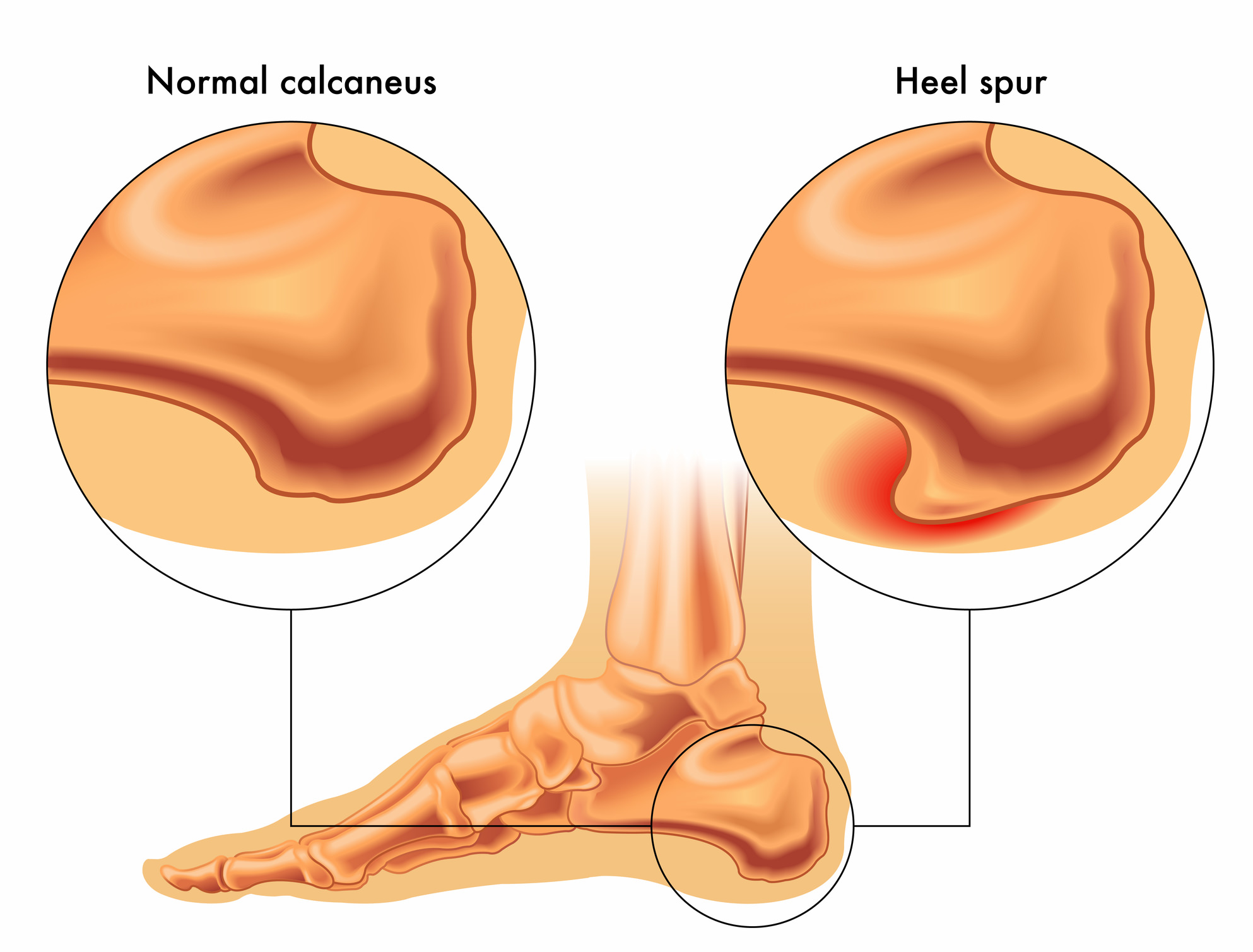 hight resolution of heel spurs diagram