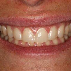 Anterior Teeth Diagram Led Lamp Driver Circuit Related Keywords Long Tail