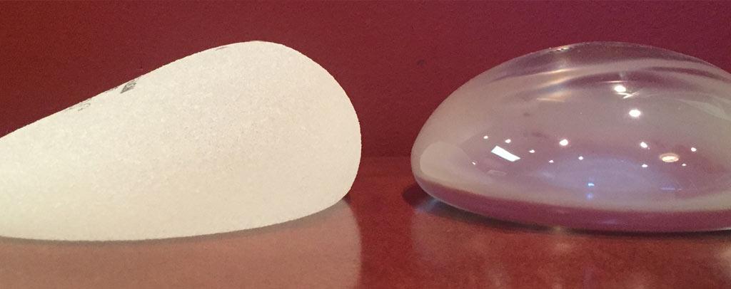 果凍矽膠隆乳「湯圓型」VS「水滴型」?矽膠隆乳推薦/建議/價格/風險 - 恆麗整型醫美診所   自體脂肪隆乳 ...