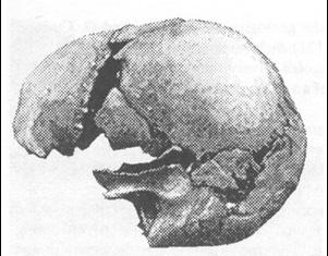 castenedolo skull