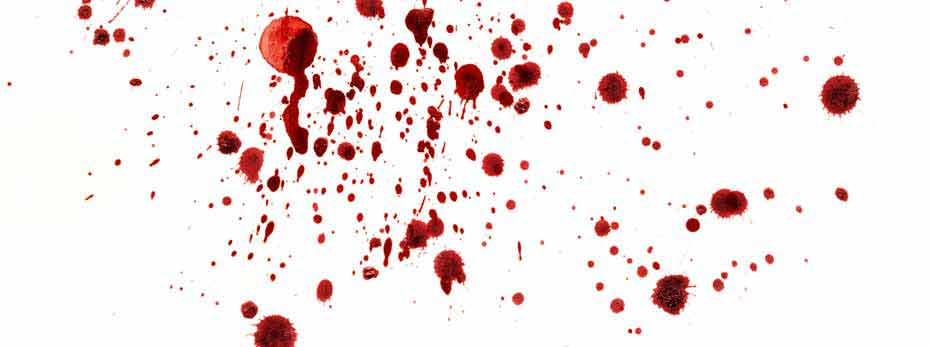 Wallpaper Falling Off Ceiling 7 Things You Didn T Know About Blood Spatter Analysis