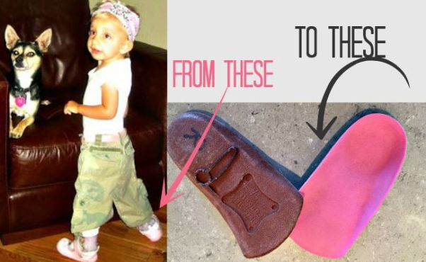 http://www.foreverinmomgenes.com/2015/03/leg-braces-be-gone.html