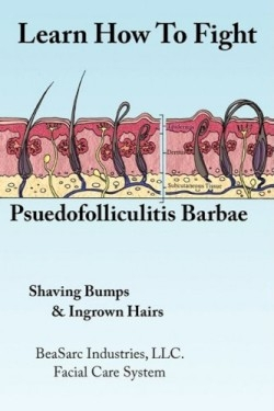 Review Of Learn How To Fight Pseudofolliculitis Barbae