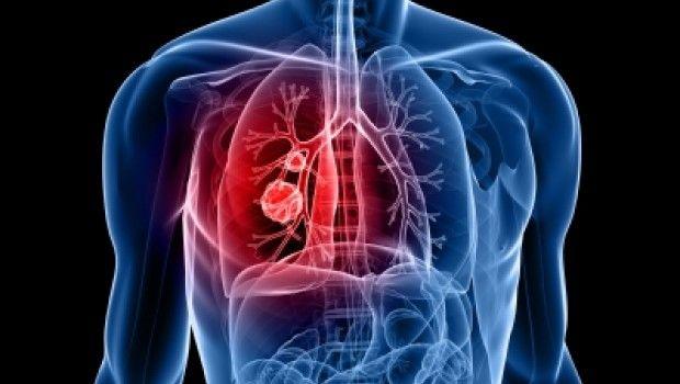 Cancer de pulmon - Formula Medica
