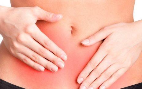 Endometriosis - Formula Medica