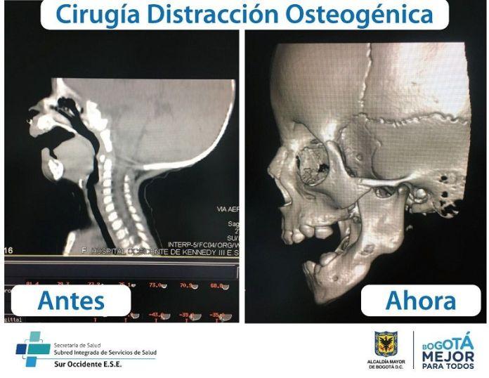 Cirugia Distraccion Osteogenica - Formula Medica