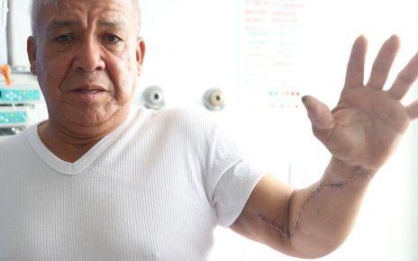 Discapacidad en el brazo - Formula Medica