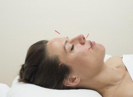 Huidverbetering zonder botox? Het kan!
