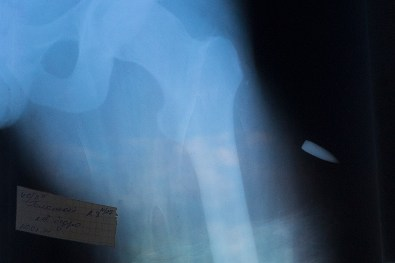 X-ray image of the bullet which caused severe damage to 27-year-old Vasil Galamay.