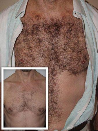 Body Hair Transplant  Miami FL