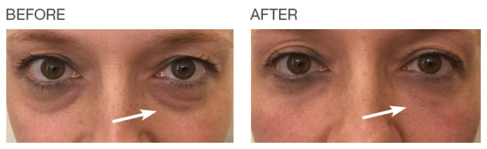 EyeRise-Undereye-circles-before-after-Patient