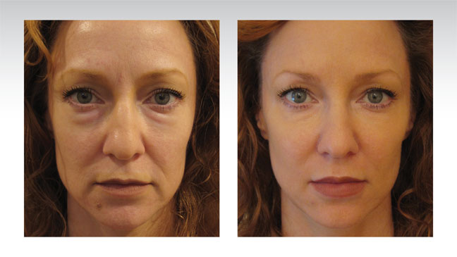 baselift-patient-before-after-redhead-face