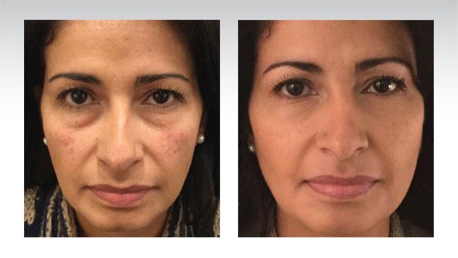 baselift-patient-face-before-after-brunette