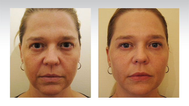 patient-before-after-baselift-face