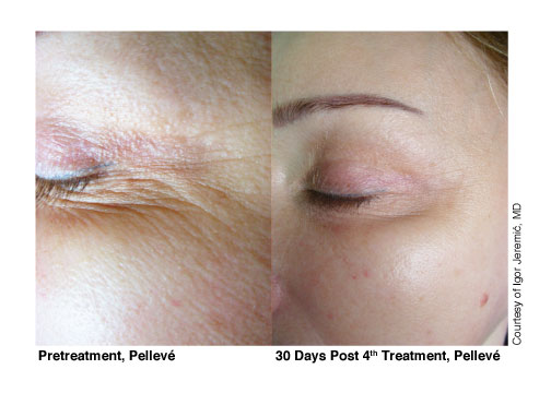 3-Pelleve-Before-&-After-Treatment-Photos