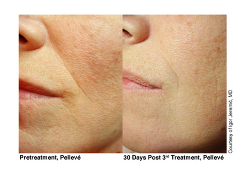 7-Pelleve-Before-&-After-Treatment-Photos-mouth